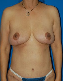 Breast Lift Photos: Case 25 - After 4 Months