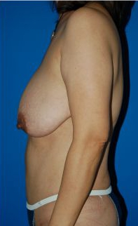 Breast Lift Photos: Case 1 - before