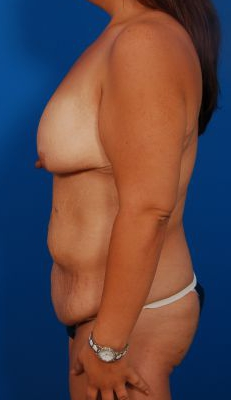 Breast Lift Photos: Case 26 - before
