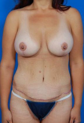 Breast Lift Photos: Case 26