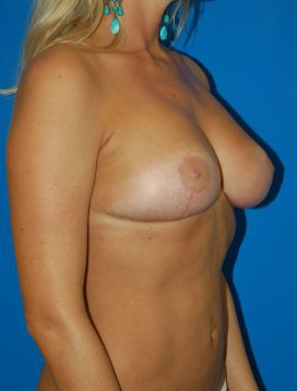 Breast Lift Photos: Case 2618 - After 3 Months