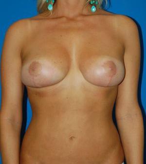 Breast Lift Photos: Case 2618