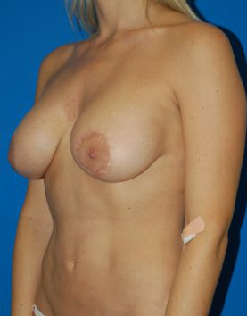 Breast Lift Photos: Case 2618 - before
