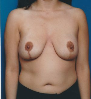 Breast Lift Photos: Case 27 - After 16 Months