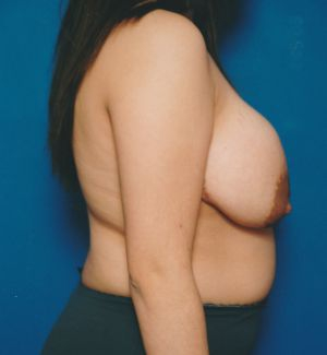 Breast Lift Photos: Case 27 - before