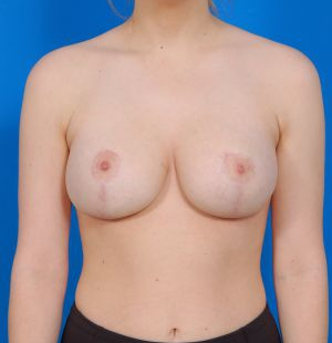 Breast Lift Photos: Case 23