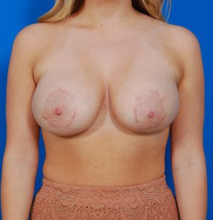 Breast Lift Photos: Case 23 - after