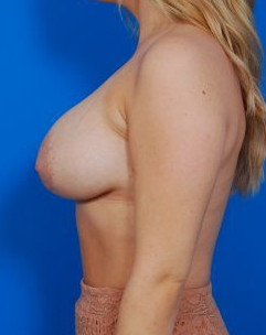 Breast Lift Photos: Case 23 - before