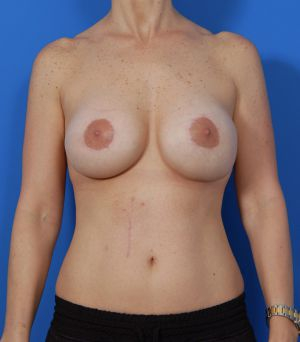 Breast Lift Photos: Case 15 - after