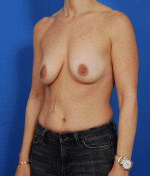 Breast Lift Photos: Case 15 - before
