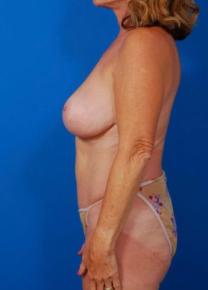 Breast Reduction and Breast Lift Case 101 - before