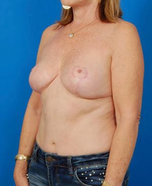 Breast Reduction and Breast Lift Case 101 - after