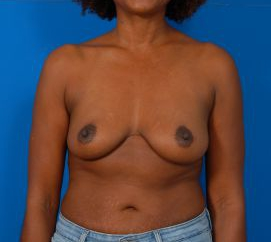 Breast Augmentation with Implants Case 1