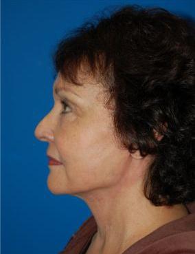 Facelift Photos: Case 10 - After 6 Weeks