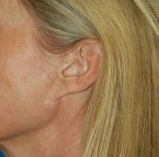 Facelift Photos: Case 13 - before
