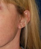 Facelift Photos: Case 13 - After 5 Weeks