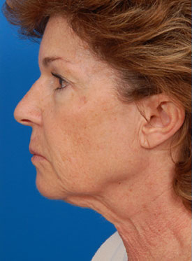 Facelift Photos: Case 2 - before