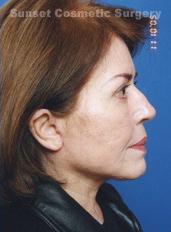 Facelift Photos: Case 4 - after