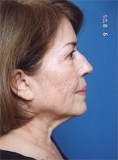 Facelift Photos: Case 4 - before