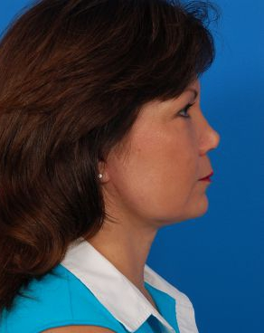 Facelift Photos: Case 9 - After 3 Months