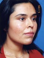 Facial Fat Grafting Photos: Case 1 - After 7 Weeks