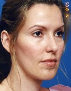Facial Fat Grafting Photos: Case 11 - before