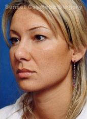 Facial Fat Grafting Photos: Case 5 - after