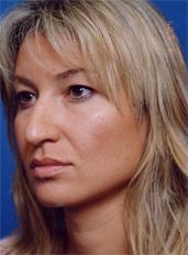 Facial Fat Grafting Photos: Case 5 - before