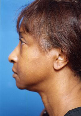 Facial Fat Grafting Photos: Case 7 - before