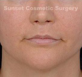 Facial Fat Grafting Photos: Case 2 - after