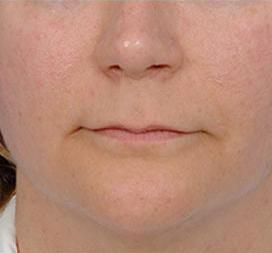 Facial Fat Grafting Photos: Case 2 - before