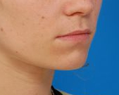 Lip Lift and Lip Reduction Photos: Case 7 - before
