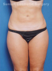 Liposuction Photos Case: 1 - after