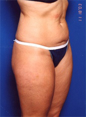 Liposuction Photos Case: 1 - before