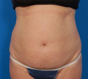 Liposuction Photos Case: 10 - before
