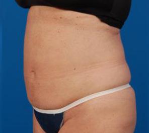 Liposuction Photos Case: 10 - after