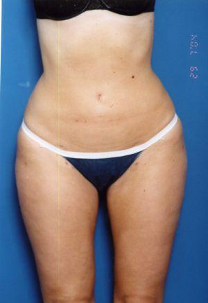 Liposuction Photos Case: 11