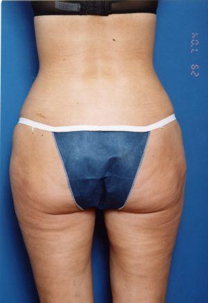 Liposuction Photos Case: 11 - after