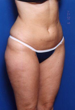 Liposuction Photos Case: 11 - before