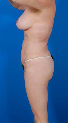 Liposuction Photos Case: 12 - After 4 Months