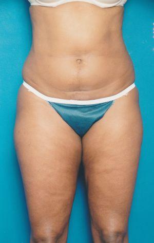 Liposuction Photos Case: 13