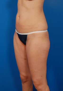 Liposuction Photos Case: 1309 - after
