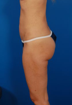 Liposuction Photos Case: 1309 - After 5 Months