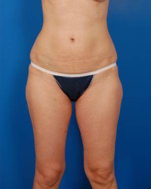 Liposuction Photos Case: 1309