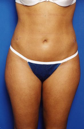 Liposuction Photos Case: 14 - After 2 Weeks