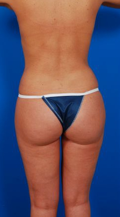Liposuction Photos: Case 16 - after