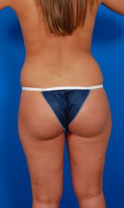 Liposuction Photos: Case 16 - before