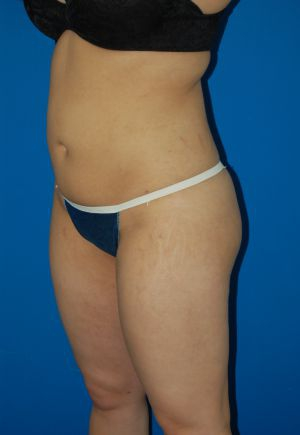 Liposuction Photos Case: 1949 - After 2 Months