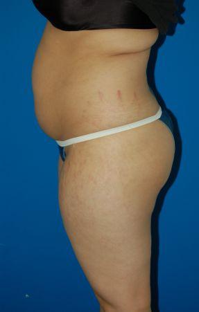 Liposuction Photos Case: 1949 - before
