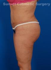 Liposuction Photos Case: 2 - after